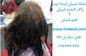 دختری که روی موهایش پر از شپش بود